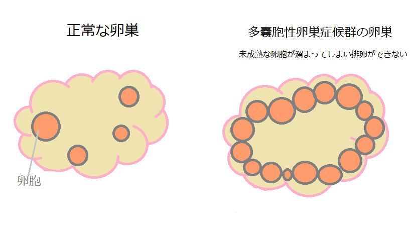 多嚢胞性卵巣症候群とは
